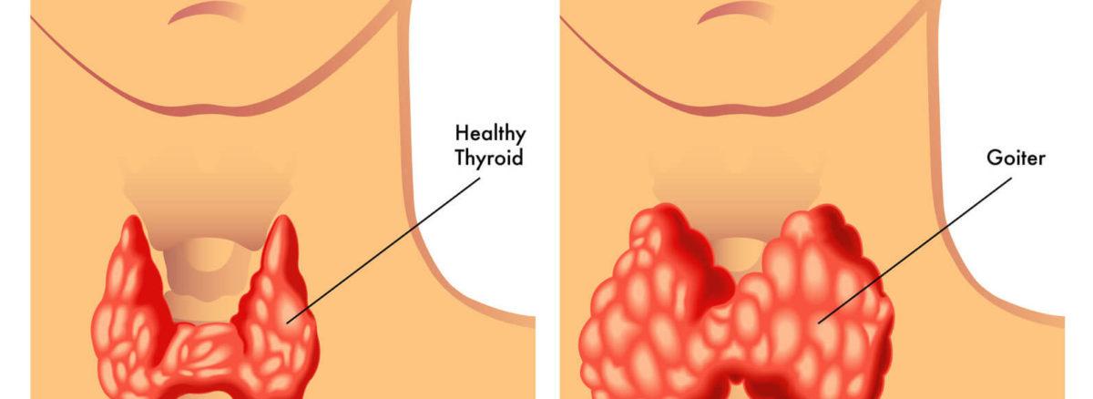 Powiększenie tarczycy może być spowodowane niedoborem jodu w diecie.